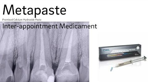 Metapaste Inter-Appointment Medicament