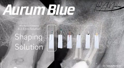 Aurum Blue With Dr. Davide Mancino