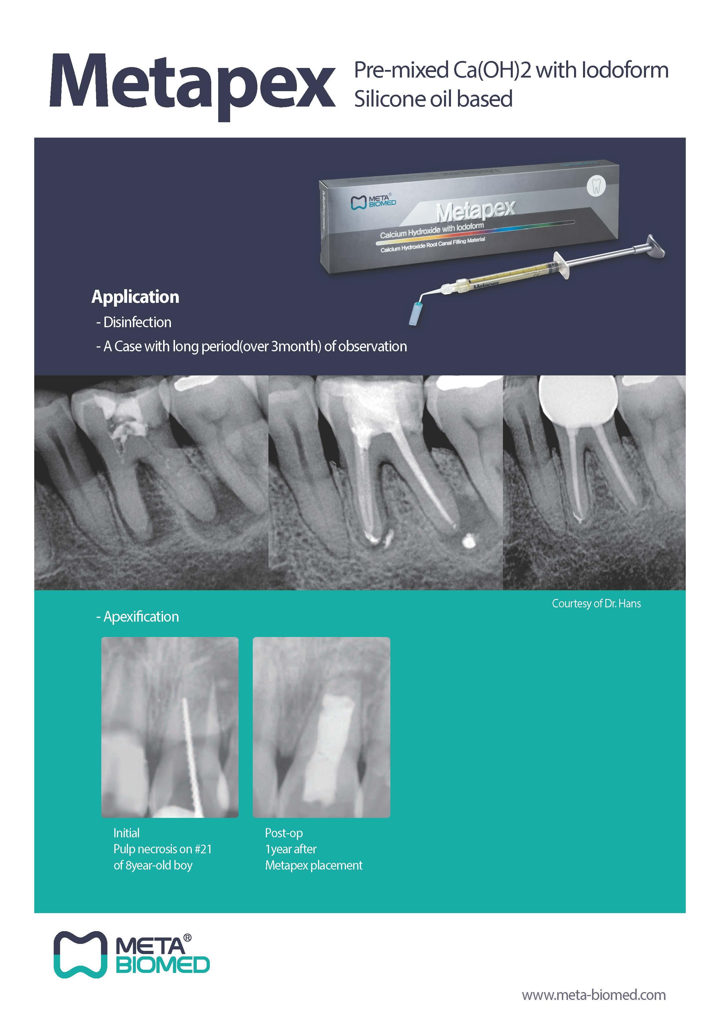 Metapex Brochure